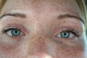 freckles...: can you see...?
