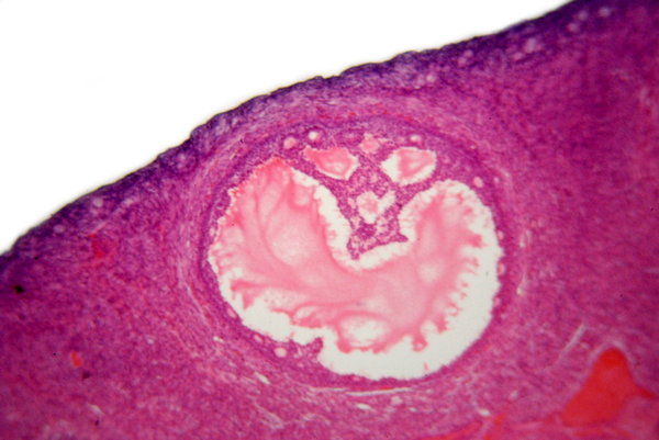 Human's ovarian follicle - mic: Graafian follicle is the basic unit of female reproductive biology and is composed of roughly spherical aggregations of cells found in the ovary. Magnification 100, 500, 1000 x