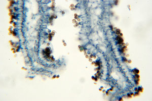 Fungus - microscopic view of s