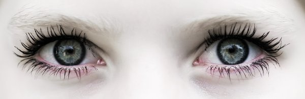 Overdose: Female eyes close-up