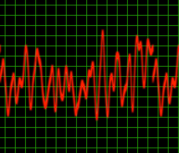 Pulse: Graphic of a heart rate or other rhythm monitor.