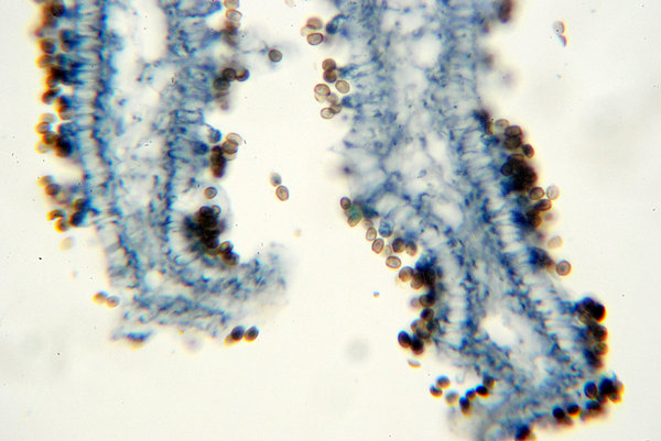 Fungus - microscopic view of s: The sporocarp of a basidiomycete is known as a basidiocarp, while the fruiting body of an ascomycete is known as an ascocarp. A significant range of different shapes and morphologies is found in both basidiocarps and ascocarps; these features play an impo