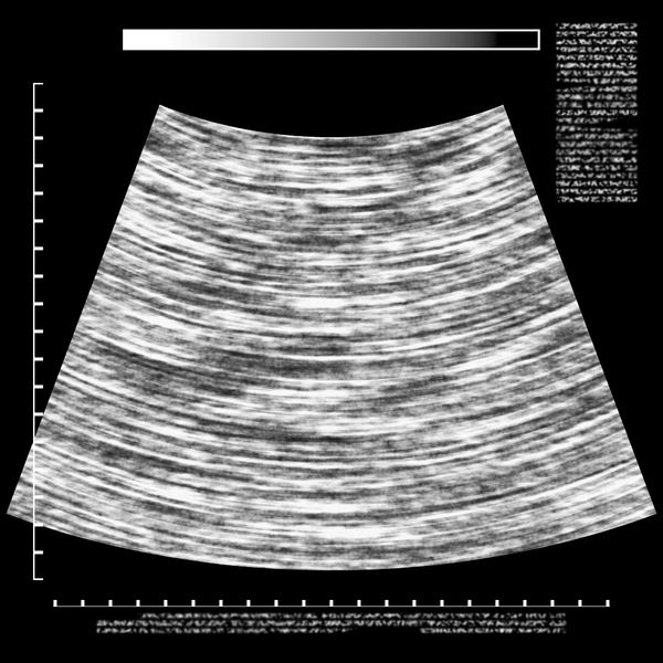 Ultrasound Background: A graphic representation of an ultrasound. You can add your own details. Use according to the RGBStock image licence or contact me.